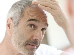 implants-capillaires-5-conseils-avant-de-commencer
